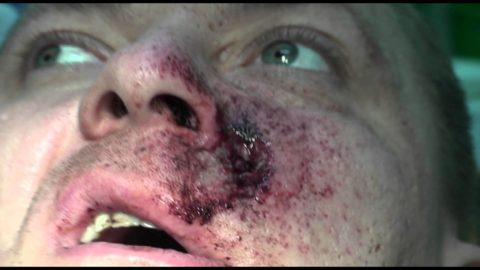 Для перелома верхней челюсти характерна деформация лица