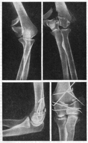 На рентгенограмме переломы мыщелков плечевой кости
