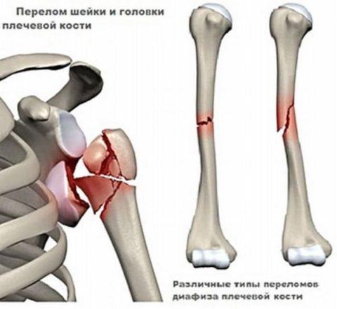 На рисунке перелом шейки, головки и диафиза кости