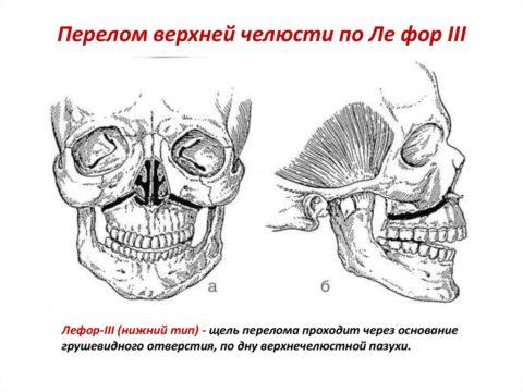 Нижний тип перелома верхней челюсти
