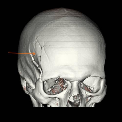 Основание черепа — это его часть, расположенная ниже глазниц