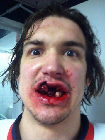 Открытый перелом челюсти — одна из наиболее опасных травм