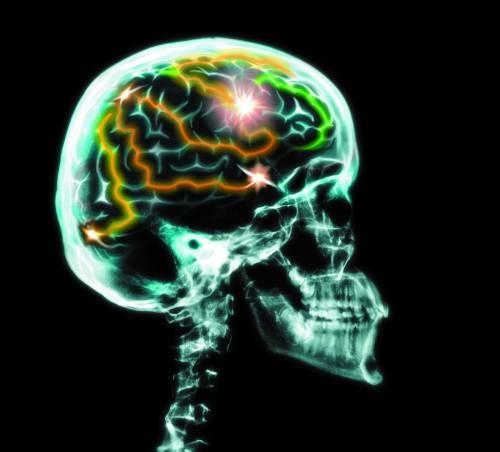 Перелом черепа — травма, опасная для жизни