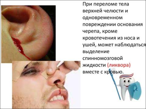Перелом верхней челюсти практически всегда сопровождается кровотечением