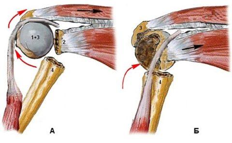 Переломы в верхней (проксимальной) зоне плеча