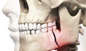 При ангулярном переломе повреждается угол челюсти