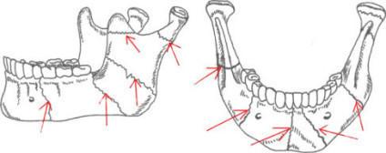 При переломе без смещения костные отломки остаются на одном уровне