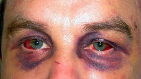Симптом очков — признак перелома основания черепа