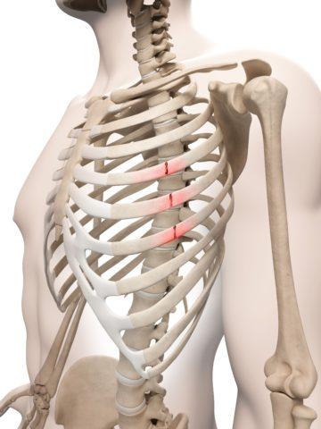 Сломанные ребра подлежат обязательному лечению