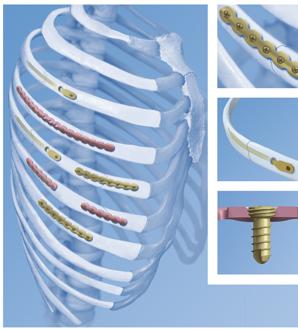 Сломанные ребра соединяют с помощью металлических пластин
