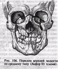 Средний перелом верхней челюсти