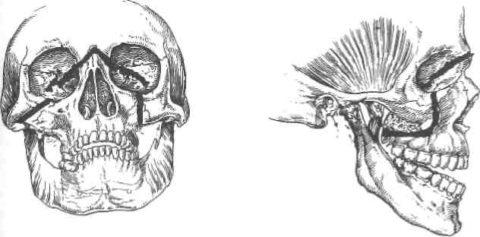 Верхний перелом верхней челюсти