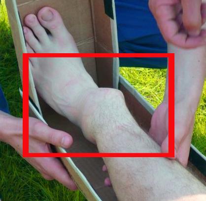 При переломе со смещением отломки кости отчетливо проступают под кожей