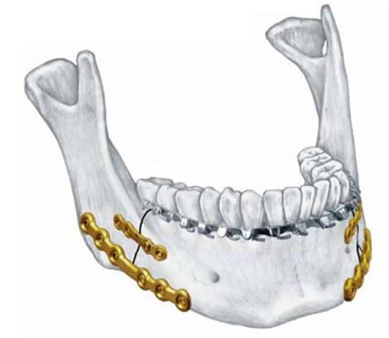 Наружный остеосинтез осуществляется металлическими пластинами