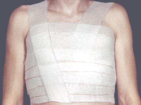 Бинтовая повязка используется при множественных неосложненных переломах.