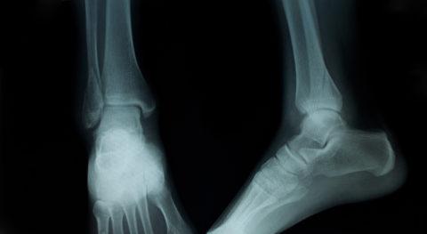 Для диагностики проводится рентгенологическое исследование как минимум в двух проекциях