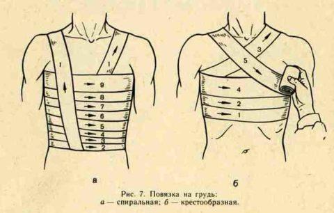 Два вида наложения повязки на грудную клетку.