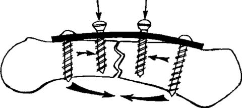 Экстрамедуллярный остеосинтез используют при переломах со смещением.