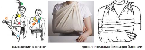 Фиксация руки со стороны перелома ключицы при транспортировке