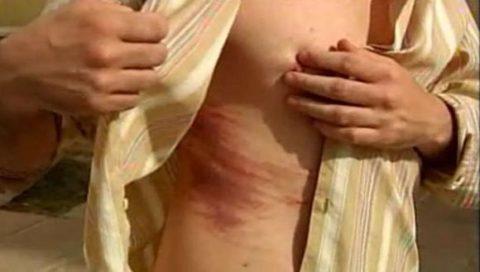 Гематома в месте травмы может свидетельствовать о переломе.