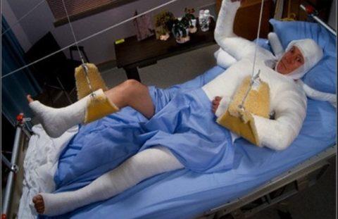 Иммобилизация открытых переломов гипсовой повязкой