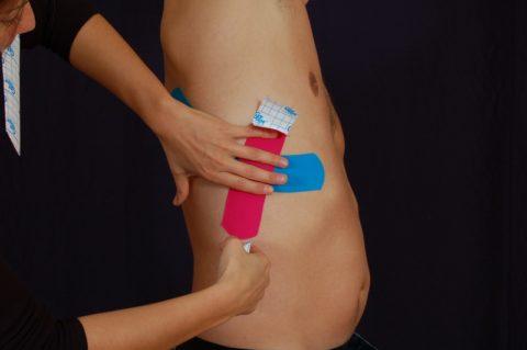 Кинезитейприрование используют для предотвращения осложнений травмы, например, пневмоторакса или смещения кости.