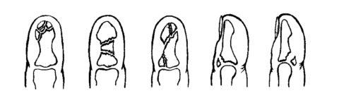 Линия перелома может иметь разную форму