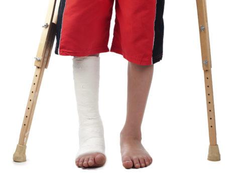 Малая берцовая кость наиболее часто подвержена травмированию