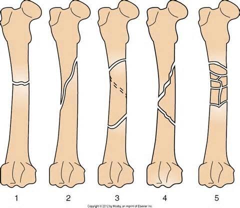 На рисунке указаны линии перелома кости