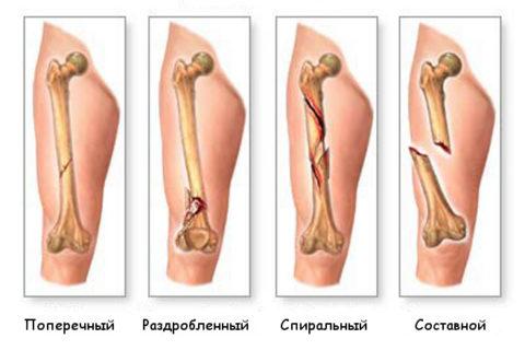 Некоторые виды переломов тела бедренной кости