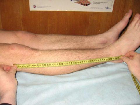 Одним из симптомов перелома является укорочение пораженной конечности.