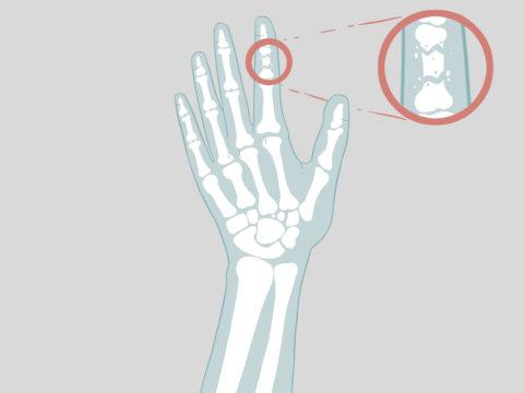 Определить перелом пальца можно с помощью рентгена