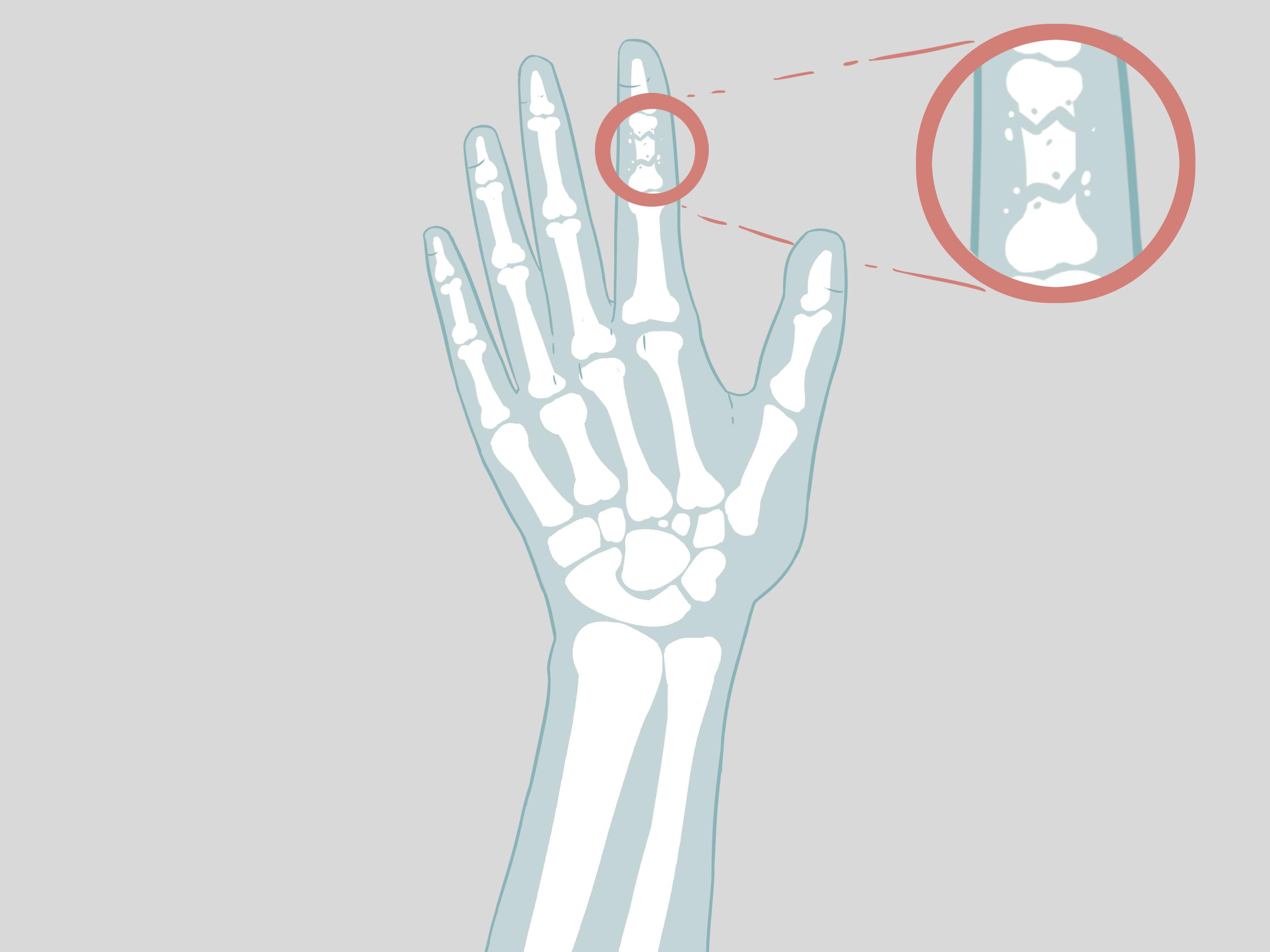 Вывих пальца руки лечение в домашних условиях - MedikYA 87