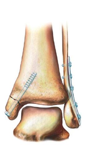 Остеосинтез при переломе голеностопа