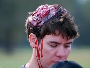 Открытая травма свода черепа