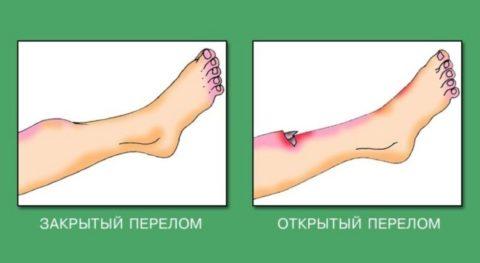 Открытый перелом встречается реже, чем закрытый