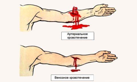 Отличие артериального кровотечения и от венозного