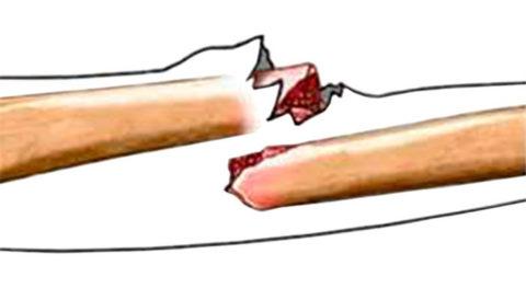 Отрытый перелом опасен кровотечением