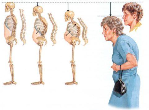 Патологические переломы позвонков меняют фигуру человека