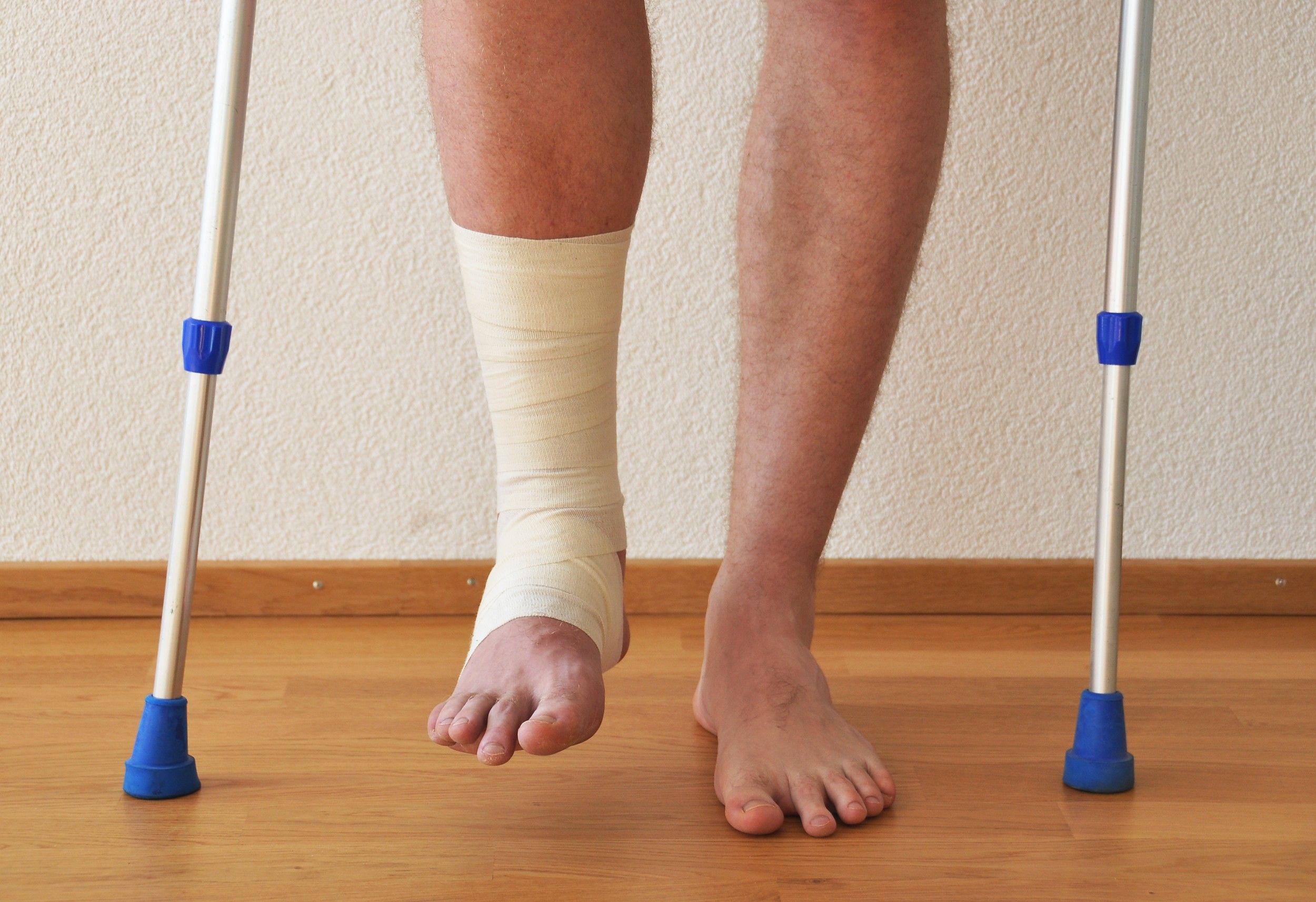 Можно ли употреблять алкоголь при переломе ноги