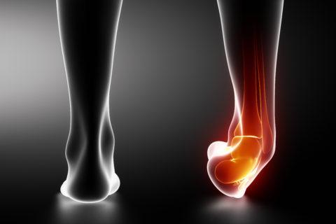 Перелом голеностопного сустава составляет 25% всех переломов костей скелета