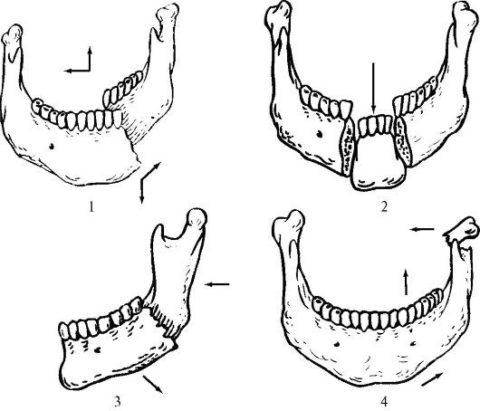 Перелом основания челюсти может происходить в разных местах