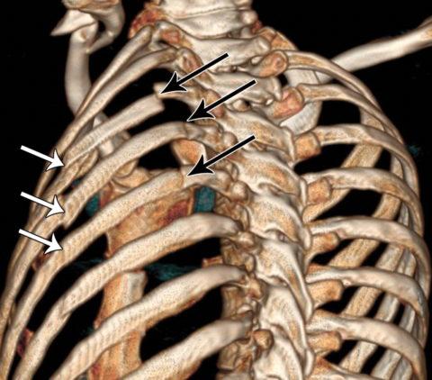 Перелом ребра может быть окончатым