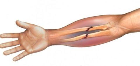 Перелом в средней трети обеих костей