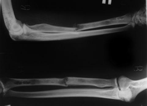 Переломы диагностируются с помощью рентгена