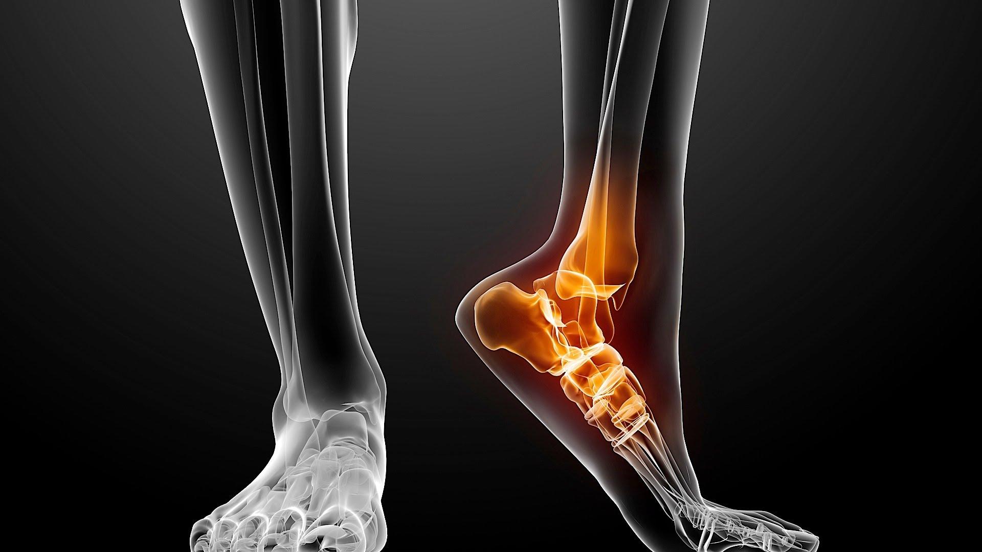 Перелом клиновидной кости стопы: особенности и последствия ...