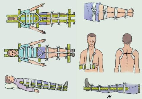 Первая помощь при переломах и вывихах – предотвращение движения больной частью тела