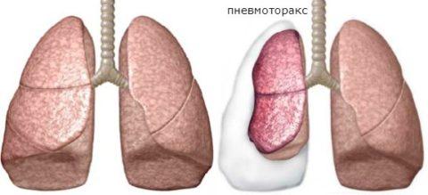Пневмоторакс – является грозным осложнением при травмах грудной клетки.