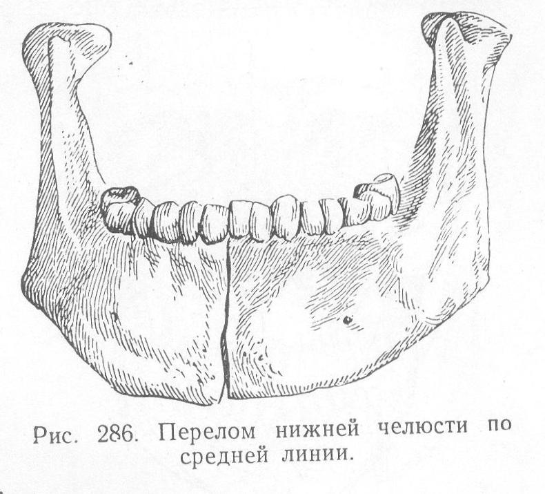 Перелом челюсти в домашних условиях