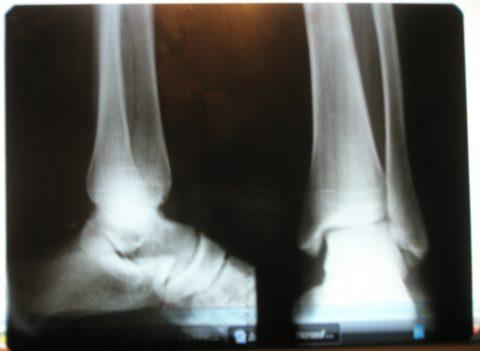 Подтвердить диагноз можно с помощью рентгенографии